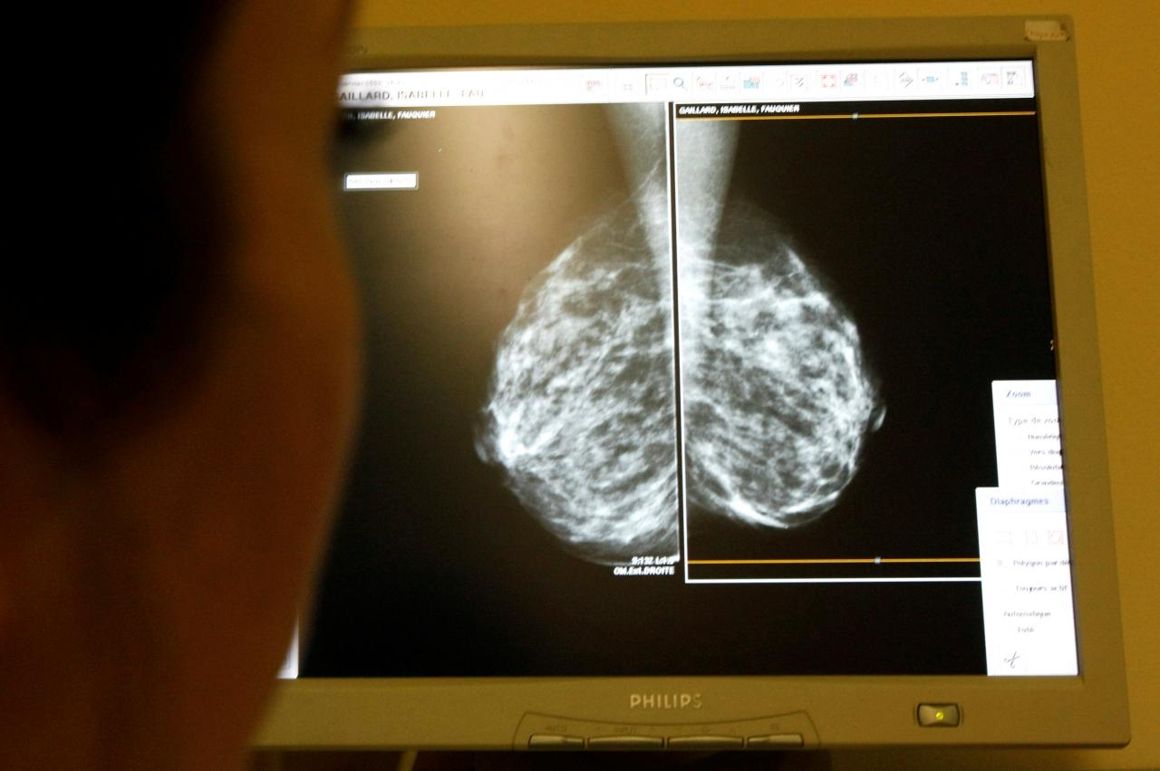 Failure of breast cancer screening may h...